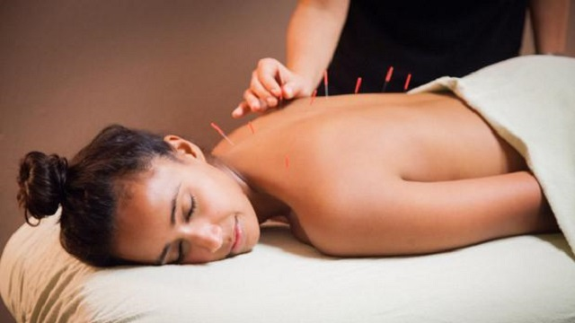 london-massage-therapist-acupuncture